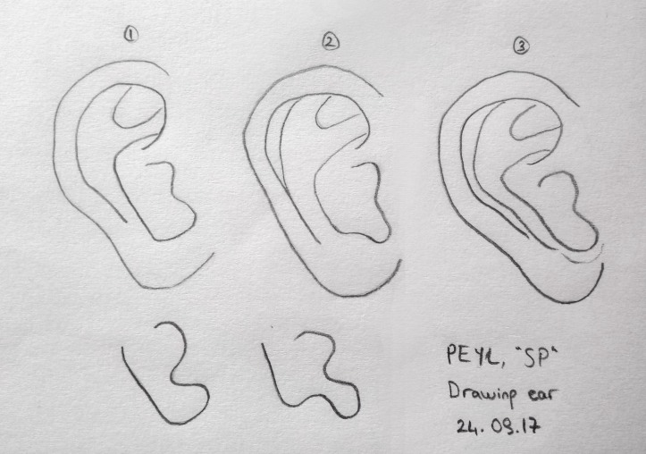 anti helix ear drawing